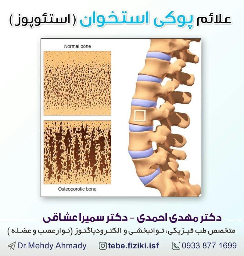 علائم پوکی استخوان (استئوپروز)
