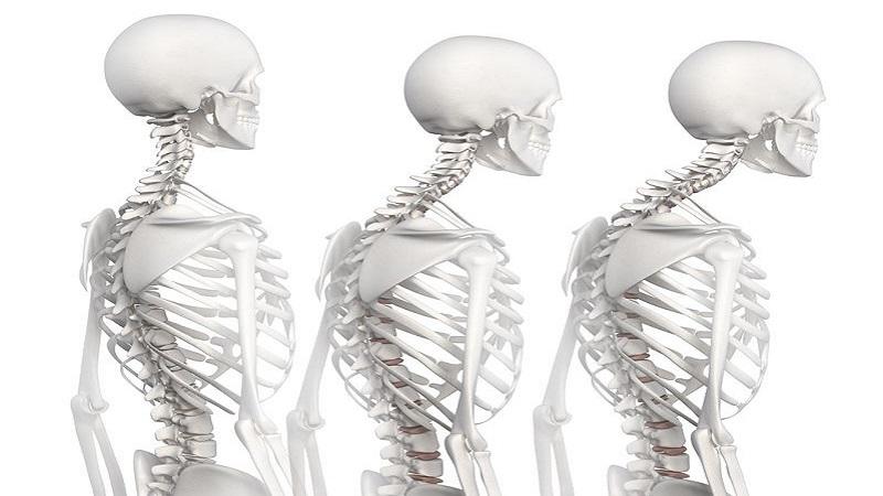 طب فیزیکی و توانبخشی اصفهان ناهنجاری گردنی رو به جلو