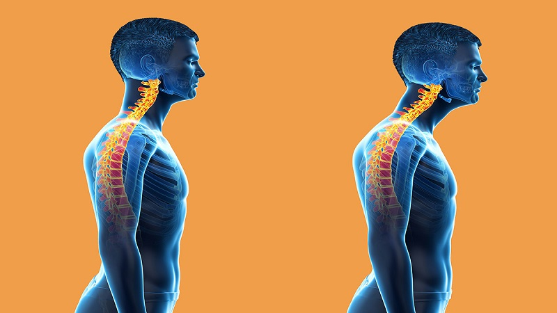 طب فیزیکی و توانبخشی اصفهان ناهنجاری گردنی سر رو به جلو
