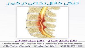 تنگی کانال نخاعی در کمر
