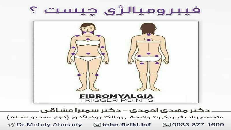 فیبرومیالژی چیست؟
