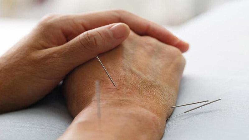 چه بیماری هایی با طب سوزنی درمان می شوند ؟