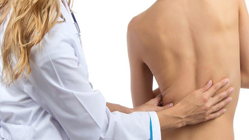 تشخیص و درمان انحراف ستون فقرات