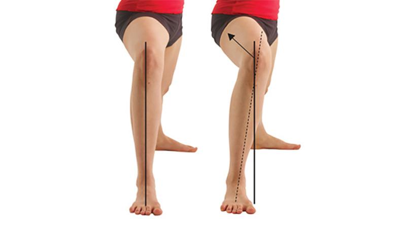 علائم پا و زانوی ضربدری و عوارض آن