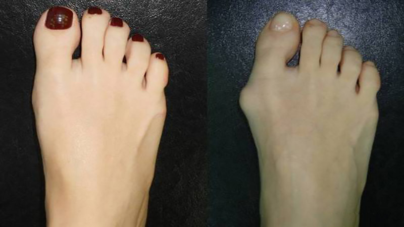 متخصص طب فیزیکی و توانبخشی اصفهان | درمان انحراف شست پا