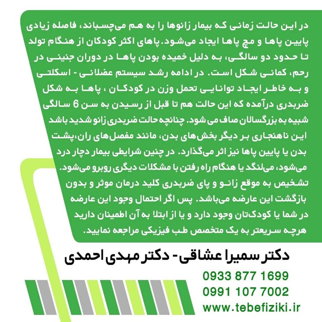 پای ضربدری | متخصص طب فیزیکی و توانبخشی اصفهان