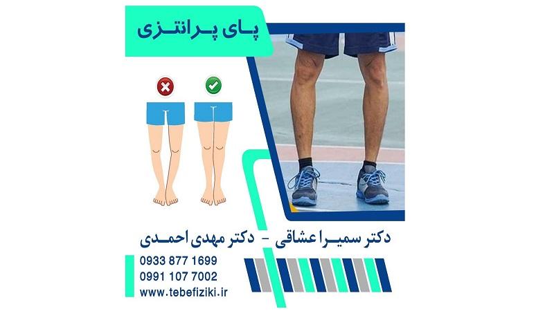 پای پرانتزی | متخصص طب فیزیکی و توانبخشی اصفهان