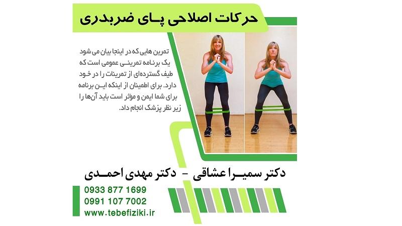 حرکات اصلاحی پای ضربدری   متخصص طب فیزیکی و توانبخشی اصفهان